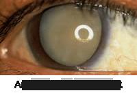 an eye before cataract surgery