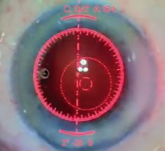example of limbal relaxing incision with ORA