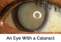 an eye before cataract surgery