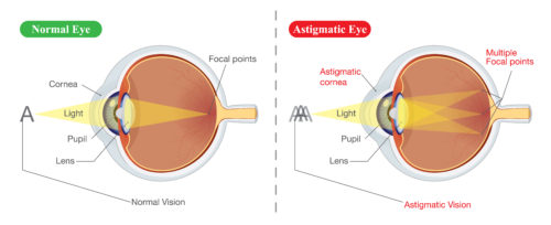 Normal Eye vs. Astigmatic Eye
